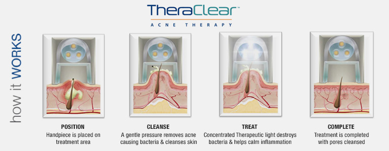 theraclear