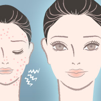 services_acne_scar_treatment