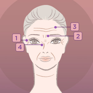 services_botox_fillers